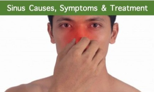 Sinusitis Treatment, Causes & Symptoms